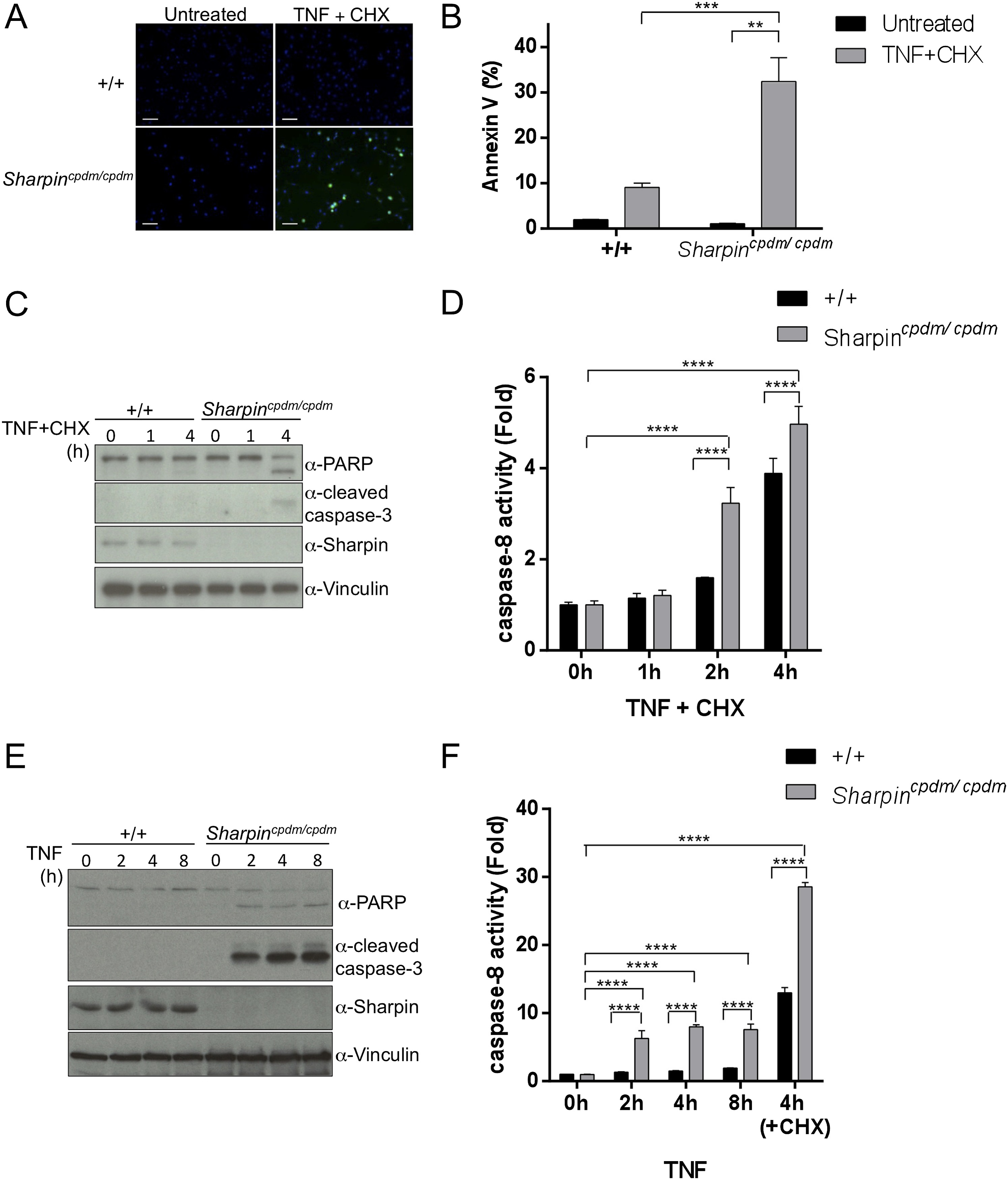Sharpin Prevents Skin Inflammation By Inhibiting Tnfr1